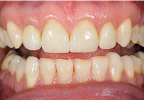 After image of smile and teeth